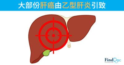 大部份肝癌由乙型肝炎引致