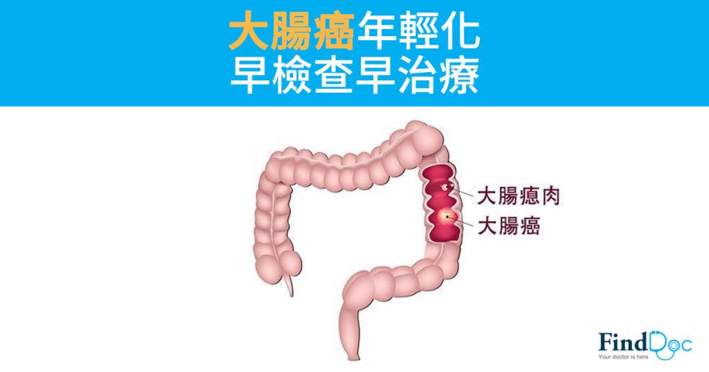 大腸癌年輕化早檢查早治療