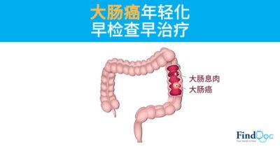 大肠癌年轻化 早检查早治疗