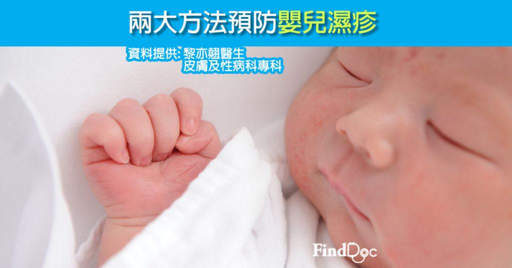 兩大方法預防嬰兒濕疹