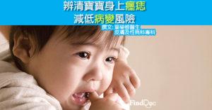 辨清寶寶身上癦痣 減低病變風險