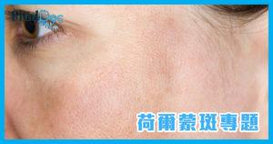 荷爾蒙斑的成因是什麼?