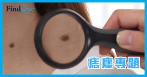 黑痣会演变成皮肤癌吗?