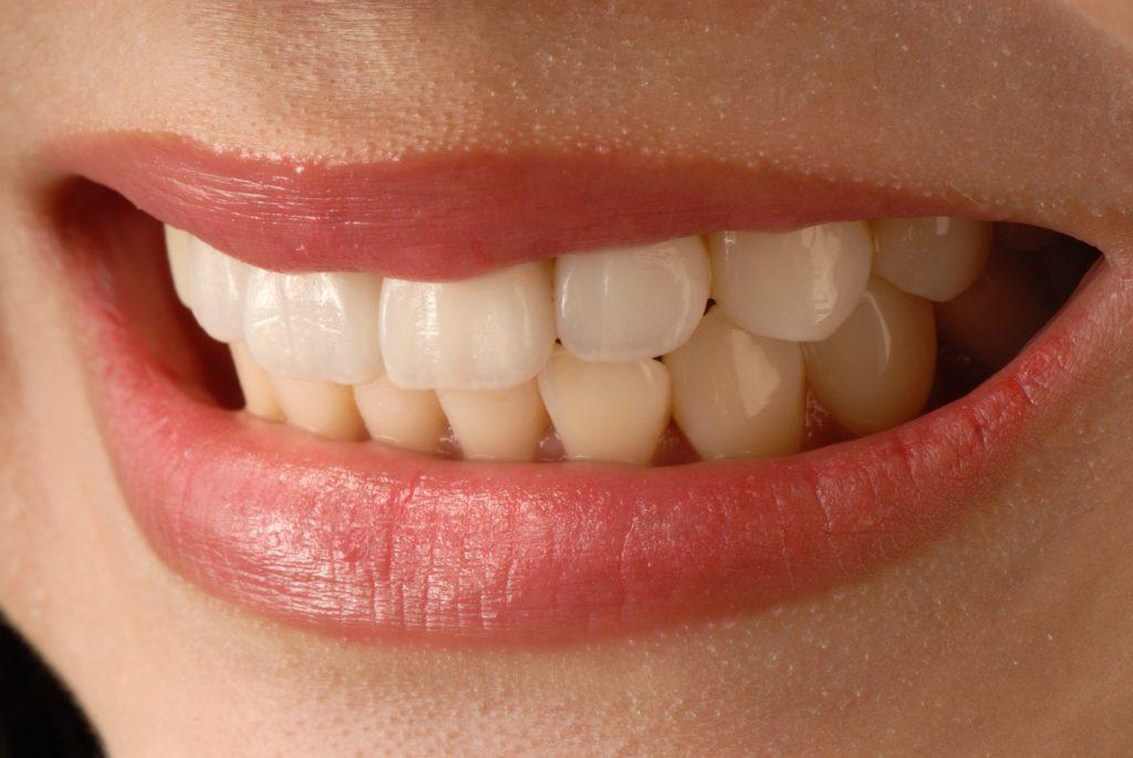 保養陶瓷牙貼 應避免啃骨頭