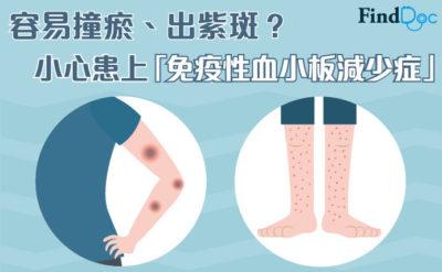 容易撞瘀、出紫班?小心患上「免疫性血小板減少症」