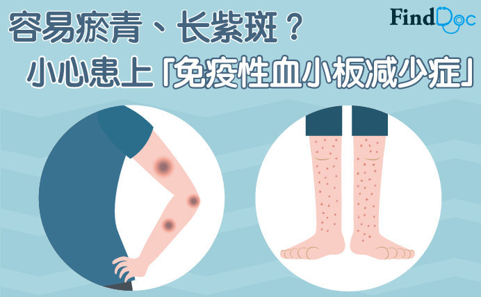 免疫性血小板减少症