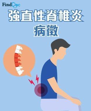 強直性脊椎炎 症狀