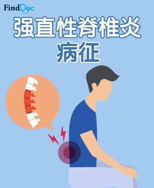 强直性脊椎炎 症状