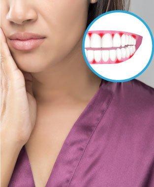 牙肉腫痛  症狀