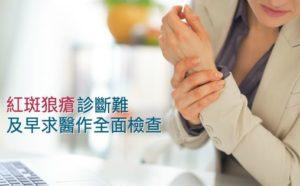 Lupus erythematosis