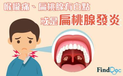 喉嚨痛、扁桃腺有白點 或是扁桃腺發炎