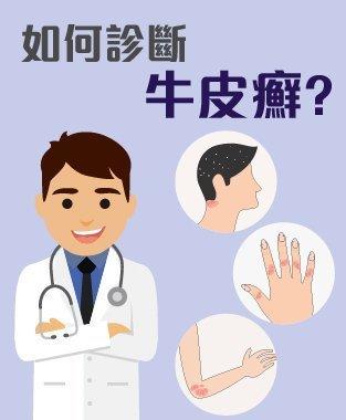 牛皮癬 診斷