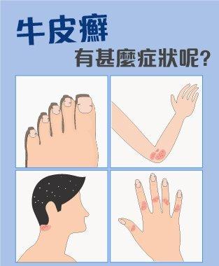 牛皮癬 (Psoriasis) 症狀