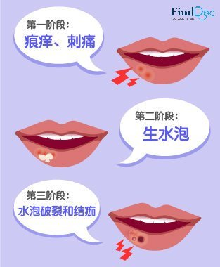 唇疮 症状