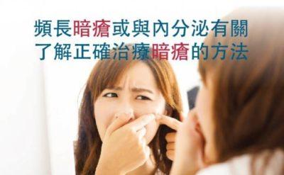 頻長暗瘡或與內分泌有關 了解正確治療暗瘡的方法