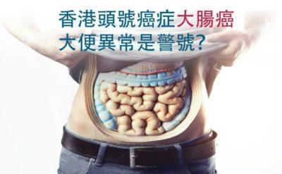 香港頭號癌症大腸癌 大便異常是警號?