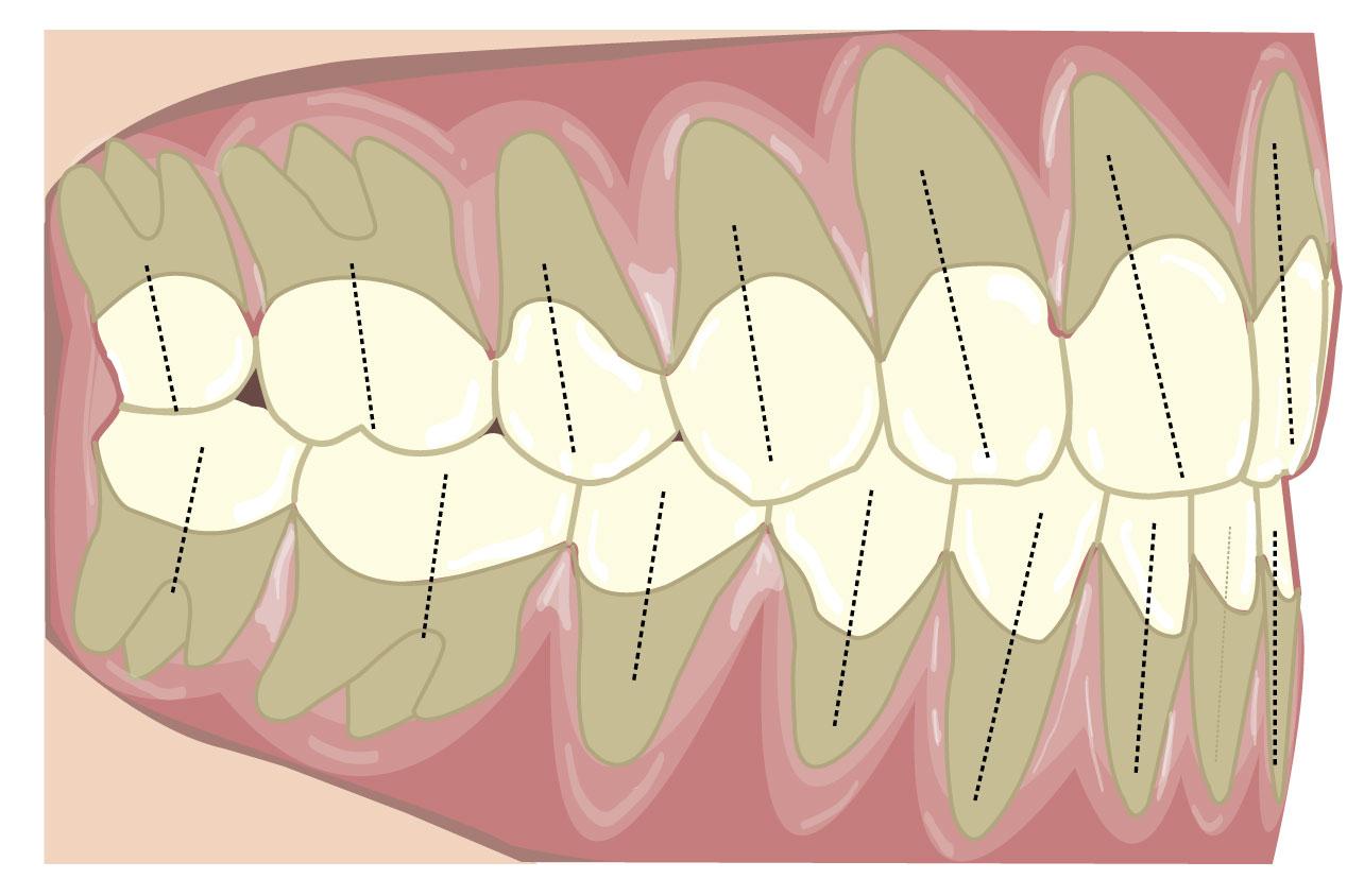 正確的牙軸斜角