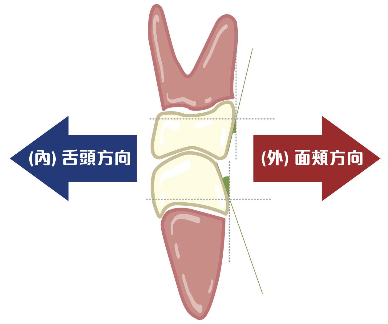 上排門牙牙冠向唇側傾斜,其他牙齒牙冠都向舌側傾斜
