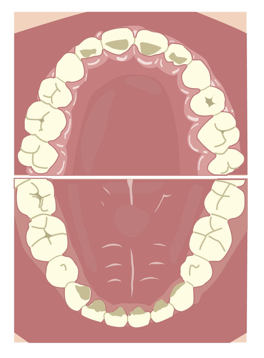 牙齒沒有旋轉