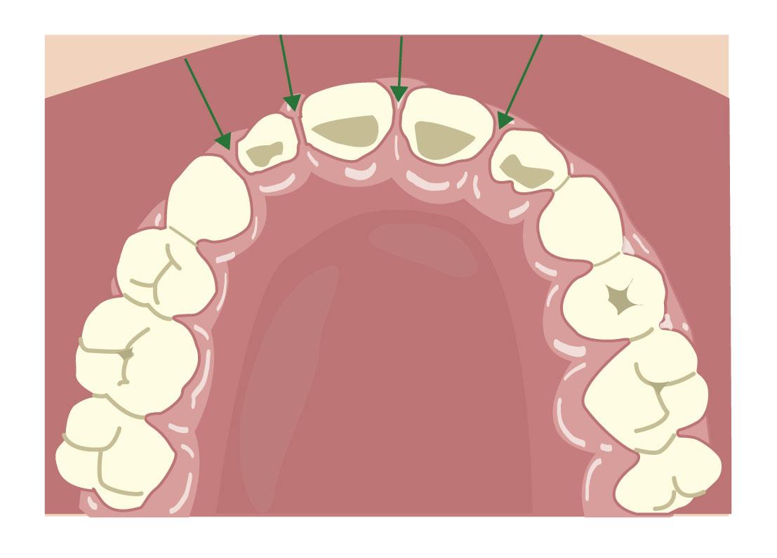 牙齒之間沒有空隙