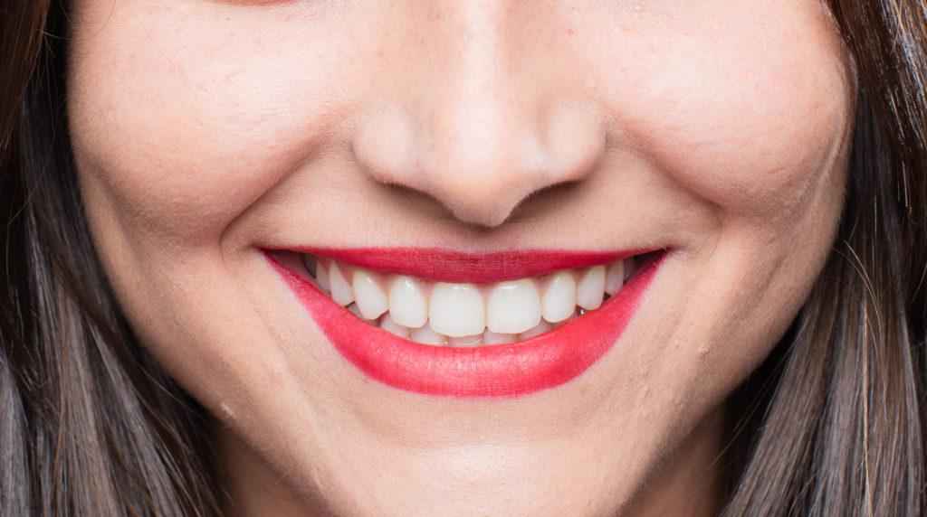 上排牙齒應包覆下排牙齒