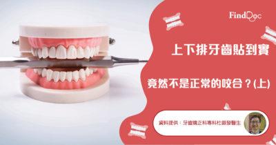 上下排牙齒貼到實 竟然不是正常的咬合?(上)
