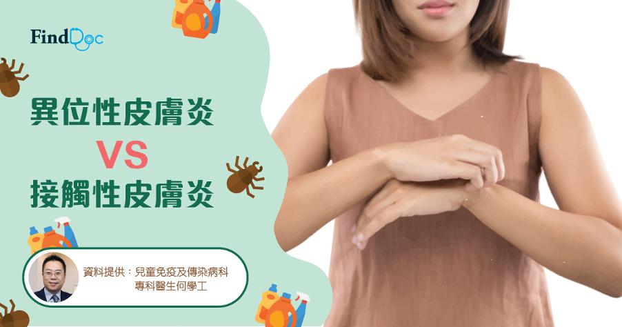 異位性皮膚炎VS接觸性皮膚炎