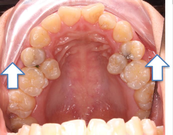 圖三:乳臼齒過早掉落引齒第一大臼齒前移,造成後排牙擠擁