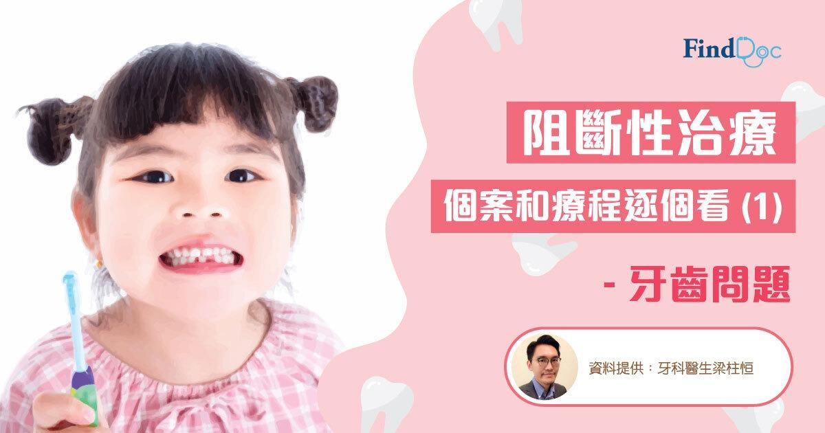 阻斷性治療 個案和療程逐個看 (1) – 牙齒問題