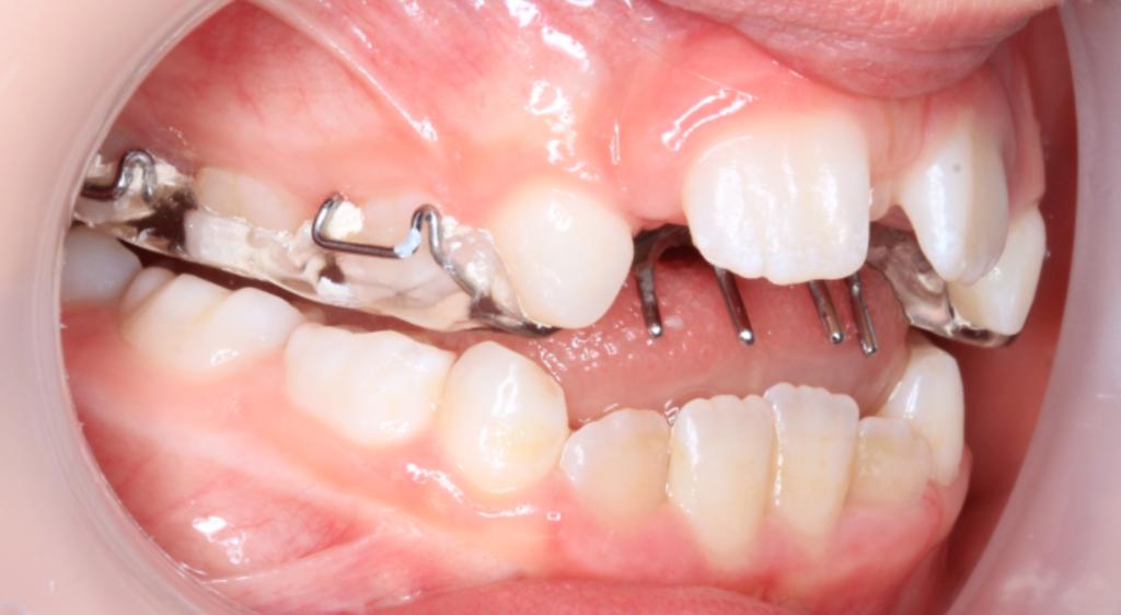 圖三:上顎擴張器態同時加入幫助戒掉吮手指習慣的設計