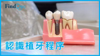 植牙要注意什麼?牙醫解構「即剝即種」技術