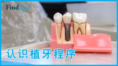 植牙要注意什么?牙医解构「即剥即种」技术